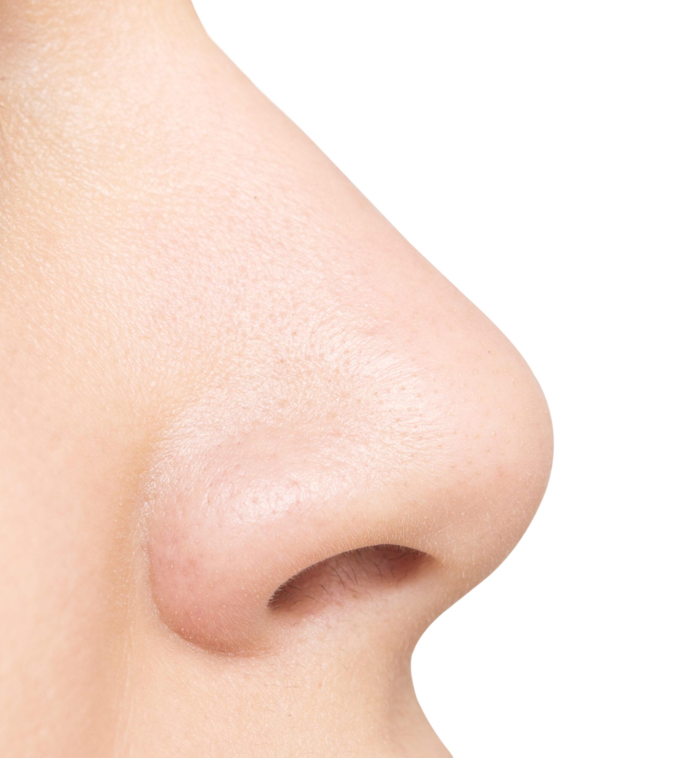 美顔水:角栓・毛穴のつまりを取り除いてくれる