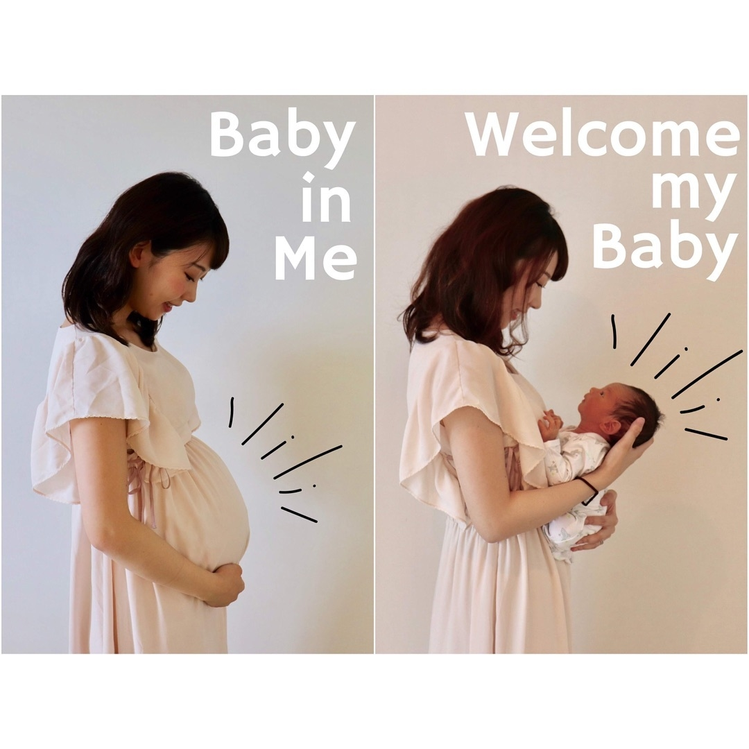 妊娠線ケアを始めよう