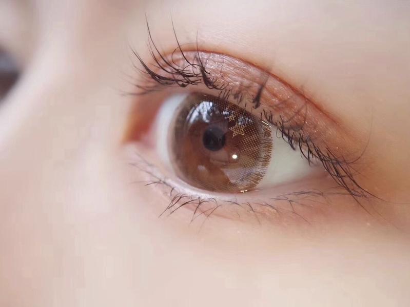 ♡:キラキラが目の下に落ちる
